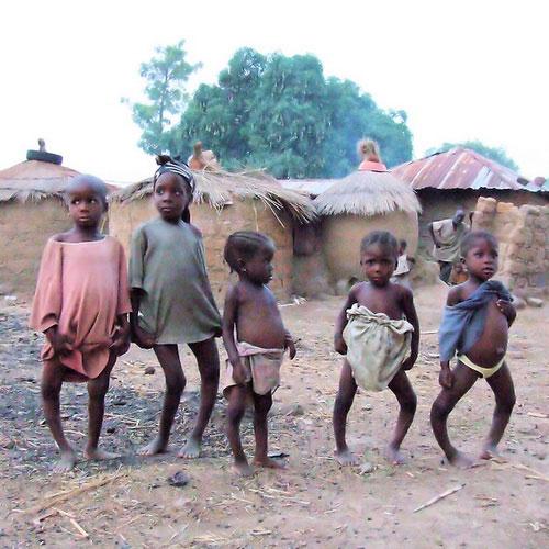 дети больные рахитом фото